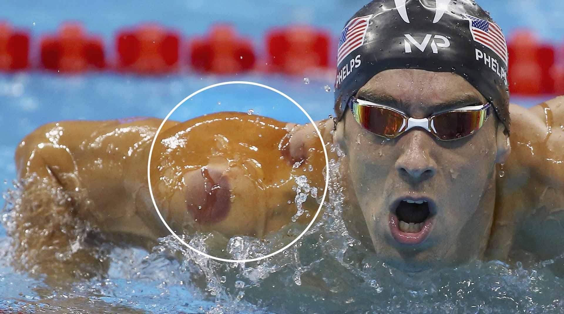 Coppettazione nuoto Medicina Tradizionale Cinese approccio olistico